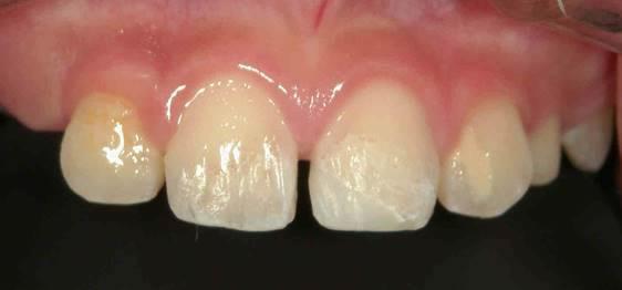子供の歯がぶつけて折れた治療後