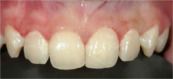 子供の歯がスポーツ中の事故で折れた治療後