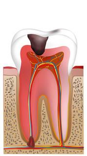 重度の虫歯に対して実施