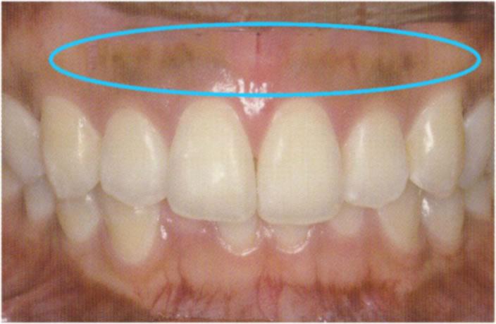 歯肉のホワイトニング治療前