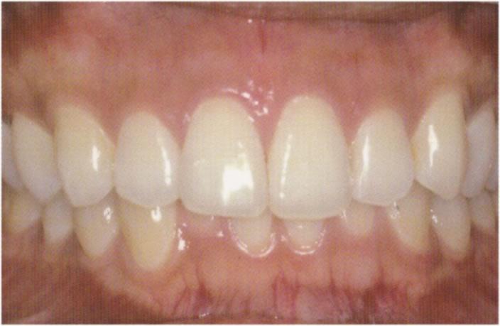 歯肉のホワイトニング治療後