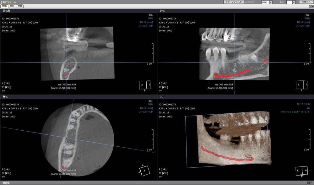 インプラントCT診断