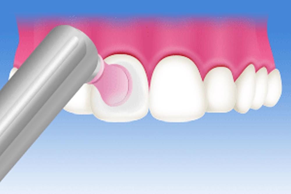 白い歯の持続