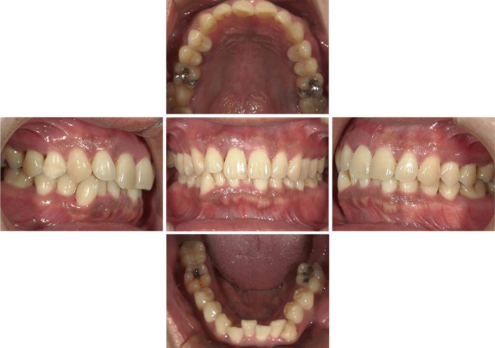 歯周病患者の写真