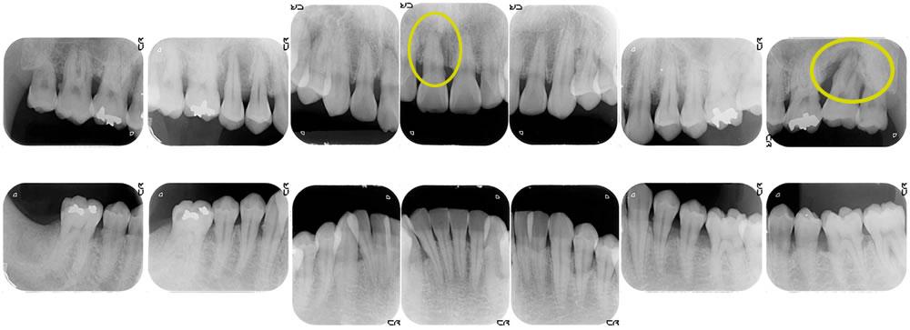 歯周病のレントゲン