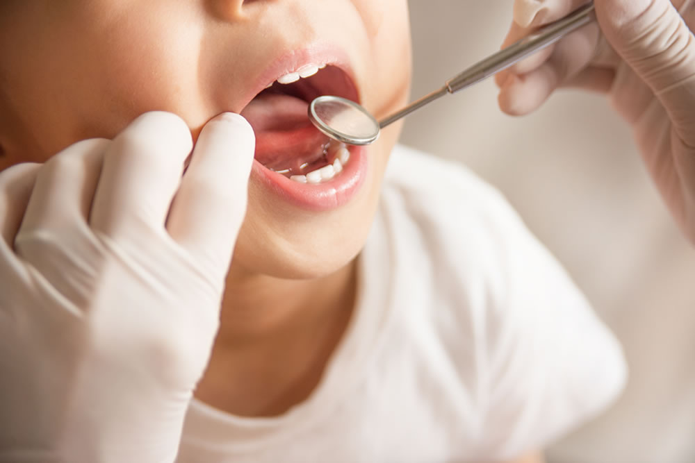 歯科医師と小児歯科専門医